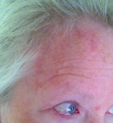 Forehead Rash? Here's What You Should Know - PinnacleHealth