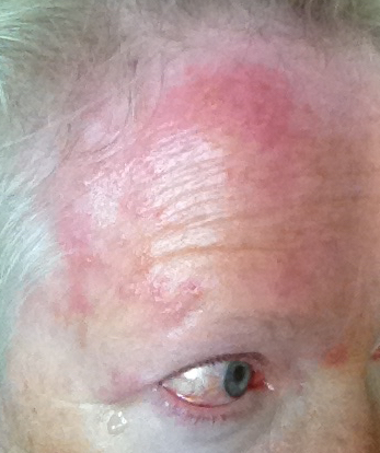 I Have Shingles On My Face Scalp And Eye Has Anyone Had ...