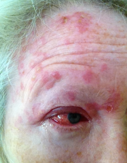 Shingles on Forehead and in the Eye